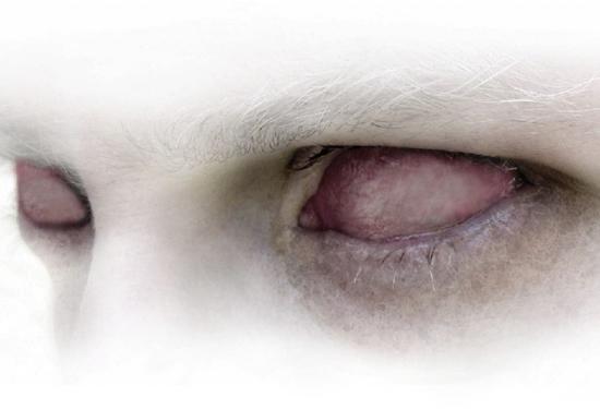 wp-albino